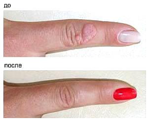 Удаление бородавок азотом воспаление