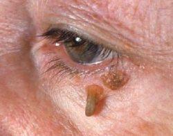 Как лечатся бородавки на лице? Традиционние и народние способи