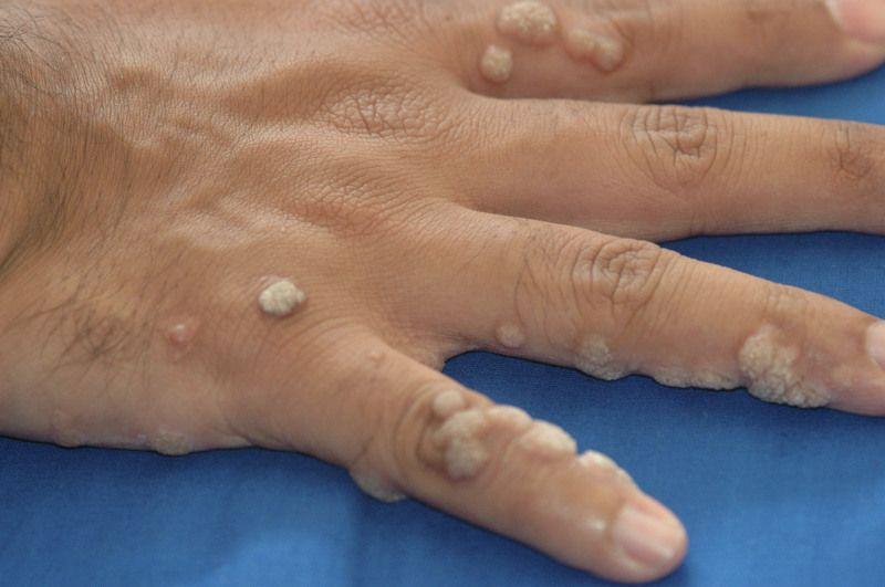Вирус папилломы человека 59 типа отзывы