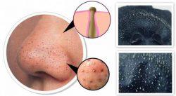 Закупоривание сальных желез приводит к появлению черных точек