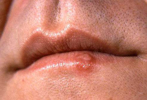 Отзывы лечения галоперидолом