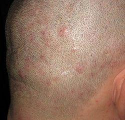 Прищи на голове в волосах. Причини, лечение и рекомендации