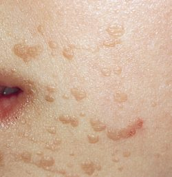 Плоские бородавки на лице и руках. Лечение и диагностика
