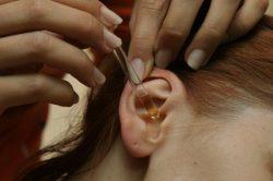 В некоторых случаях помогает закапывание уха