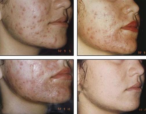 Щетка для глубокого очищения кожи лица mary kay skinvigorate отзывы