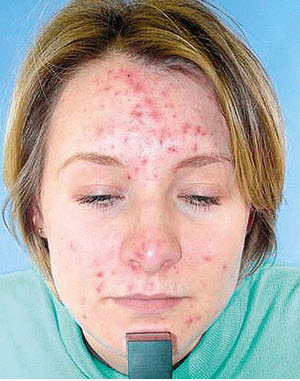 как бороться с аллергией на собаку