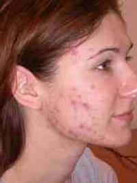 угри на лице в 30 лет у женщин