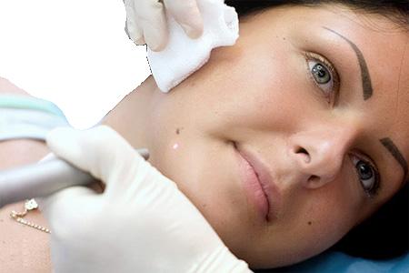 Папиллома на язычке в горле