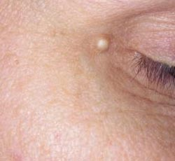 Заложенность носа по ночам причины лечение