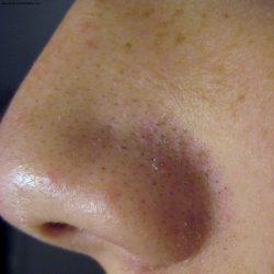 Такие черные точки на носу наверное есть у каждого второго