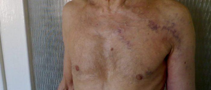 Фурункул на груди у женщин и мужчин: как лечить, причини