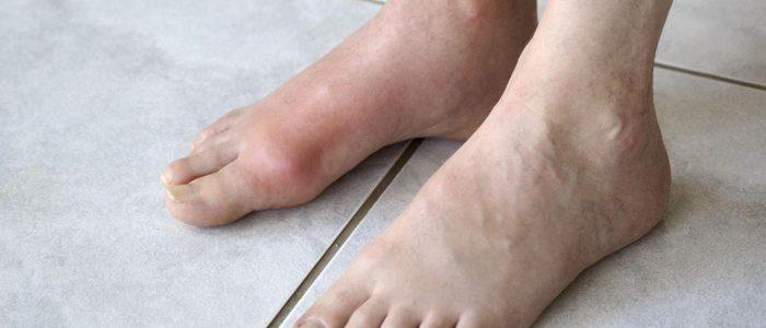 фото чирей на ноге