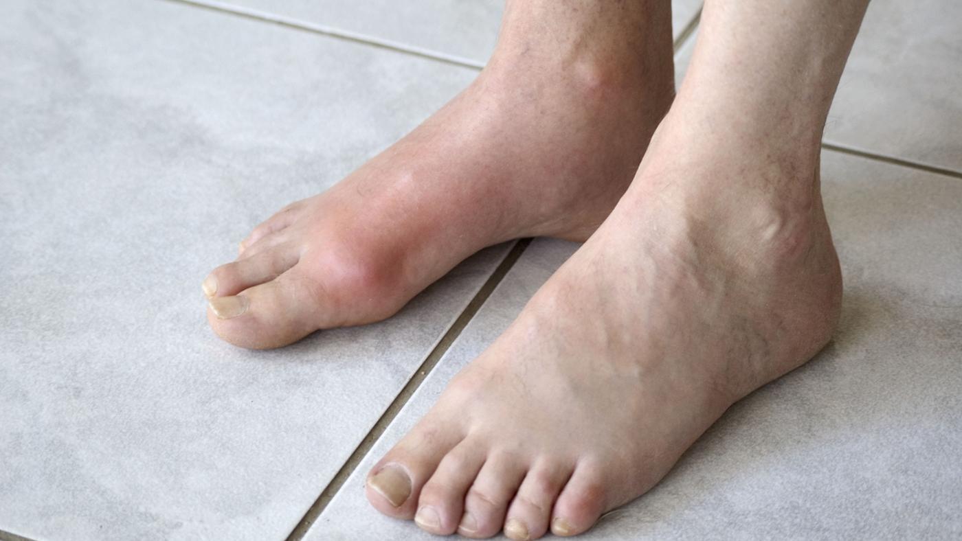 проблемы с суставами ног и их лечение