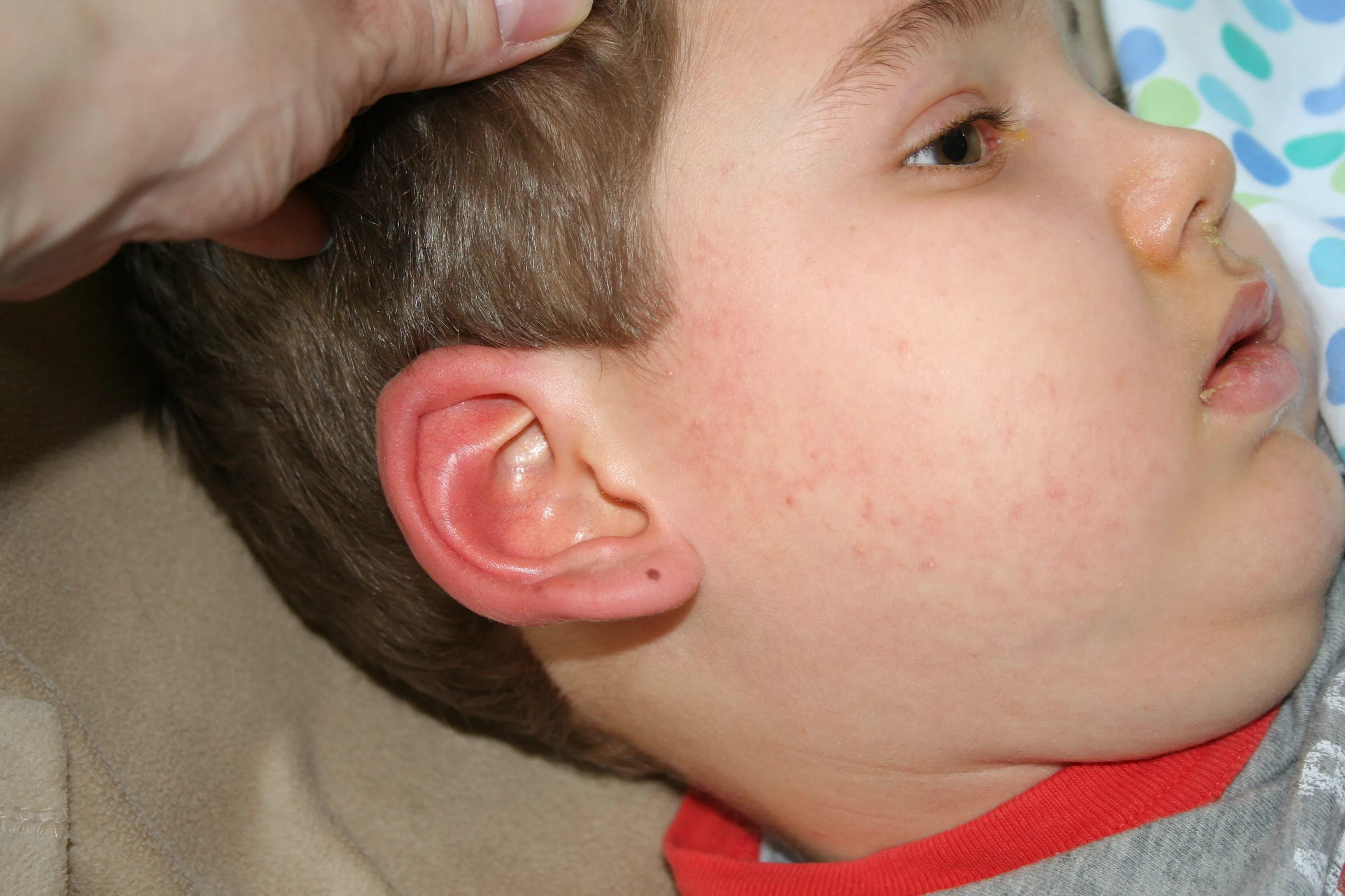 Чирии у ребенка причины и лечение фото