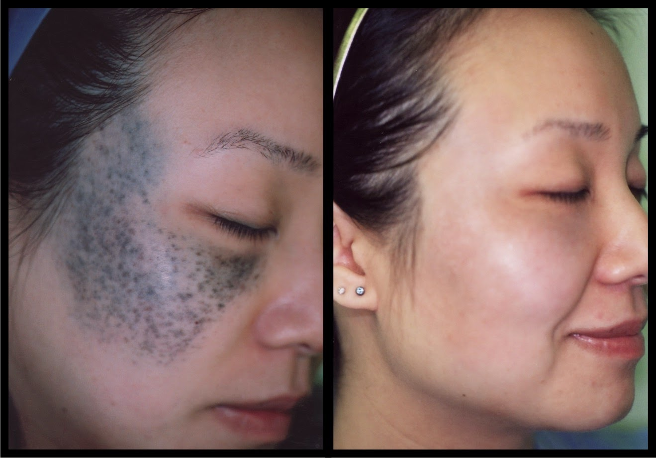 a personal account of living with nevus of ota a blue hyperpigmentation condition Abstract and introduction nevus of ota, or nevus fuscoceruleus ophthalmomaxillaris, is a dermal melanocytic hamartoma that presents as bluish hyperpigmentation along the first or second branches of the trigeminal nerve.