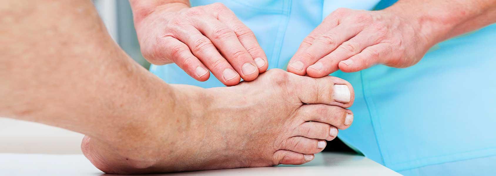 Какой врач лечит косточки на ногах