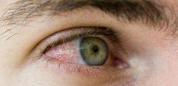 Нарост на белке глаза