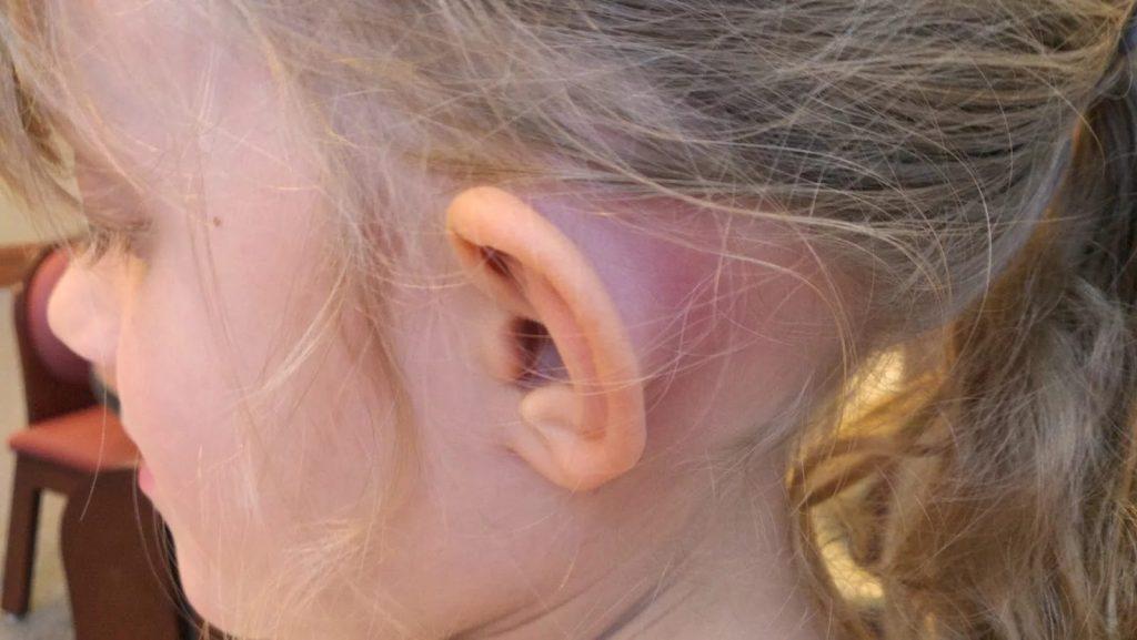 В ушной раковине фурункул