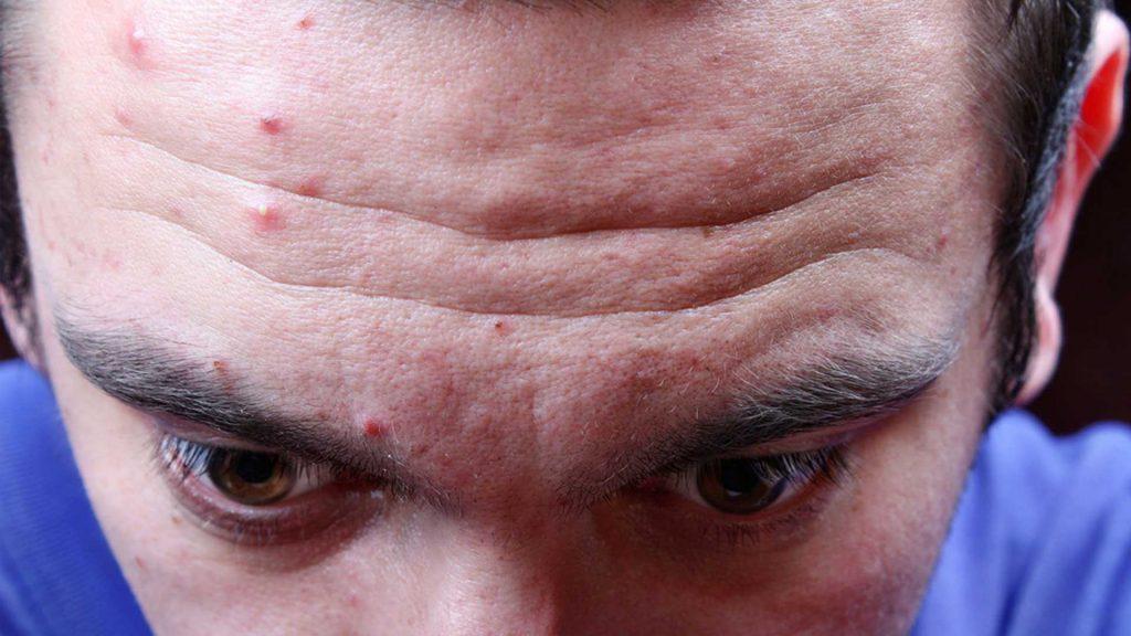 Внутренний фурункул на лице