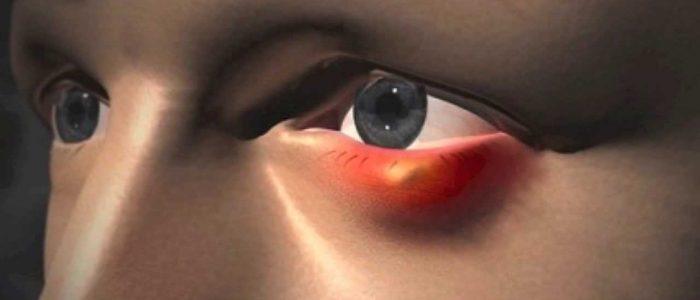 Шишка на нижнем веке глаза