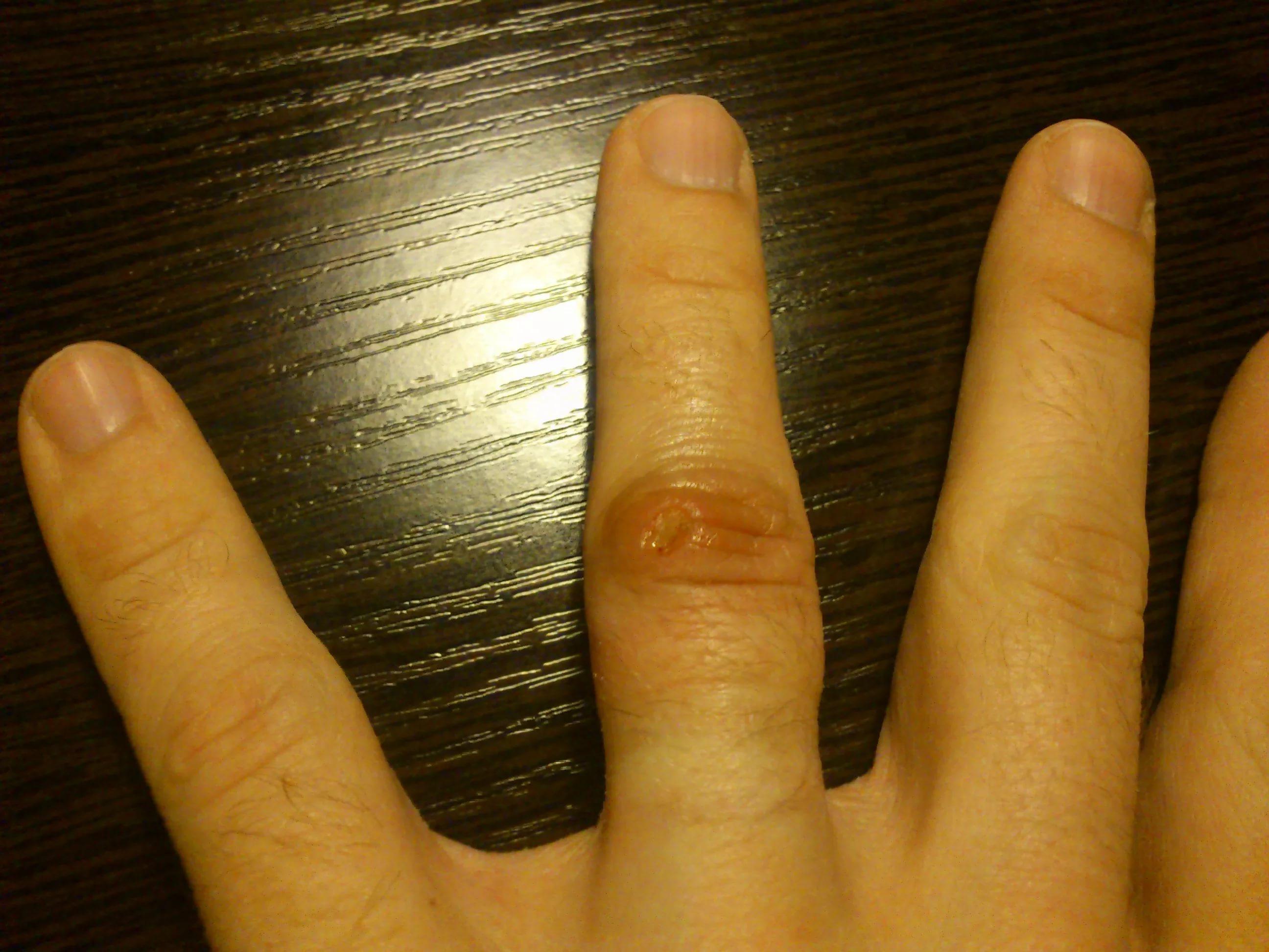 опухают суставы на пальцах рук что делать лечение