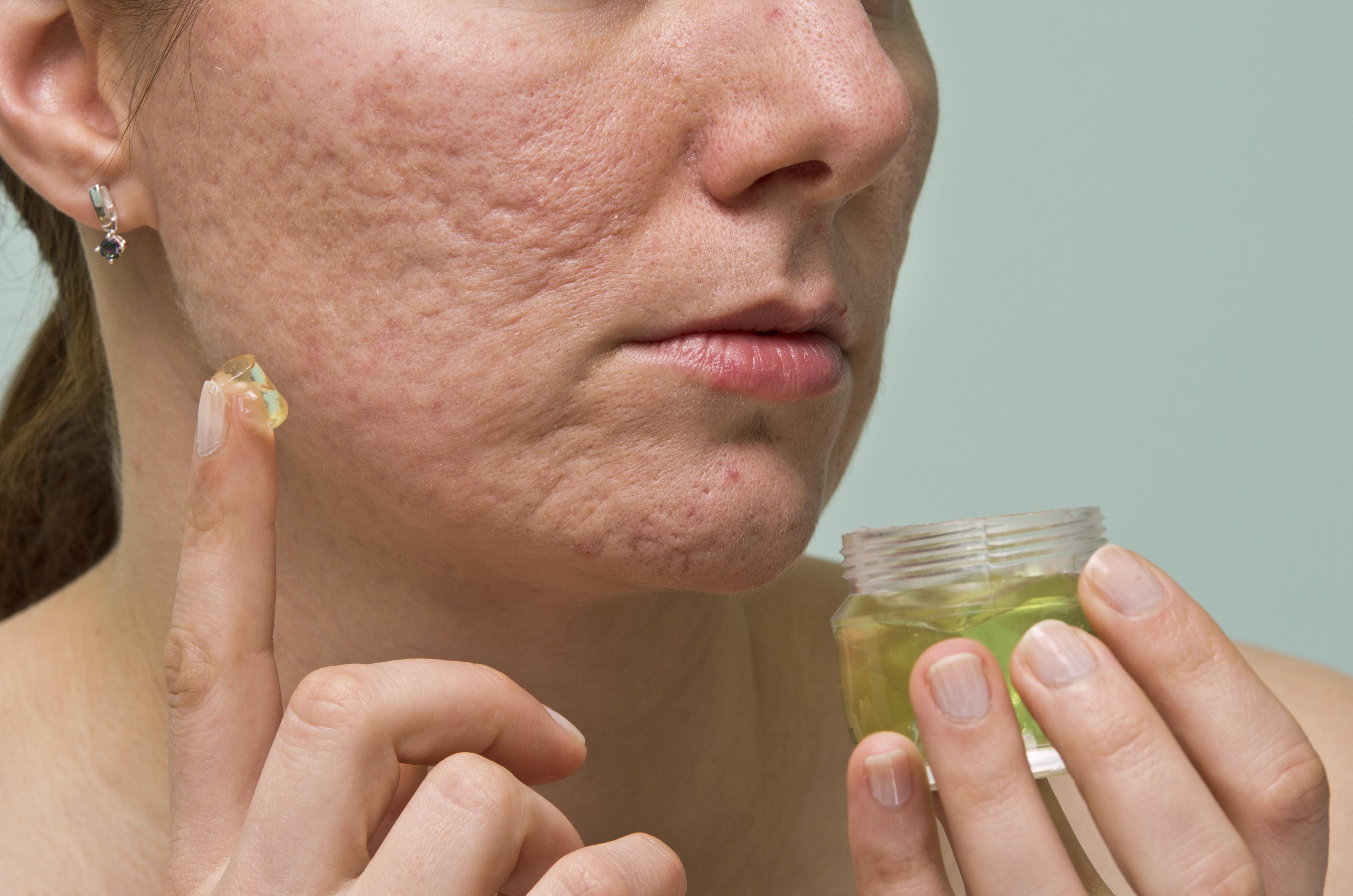 Совет 1: Как избавиться от дырок на лице