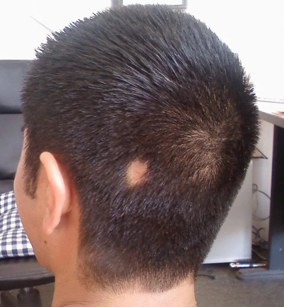 schwarzkopf professional для роста волос купить