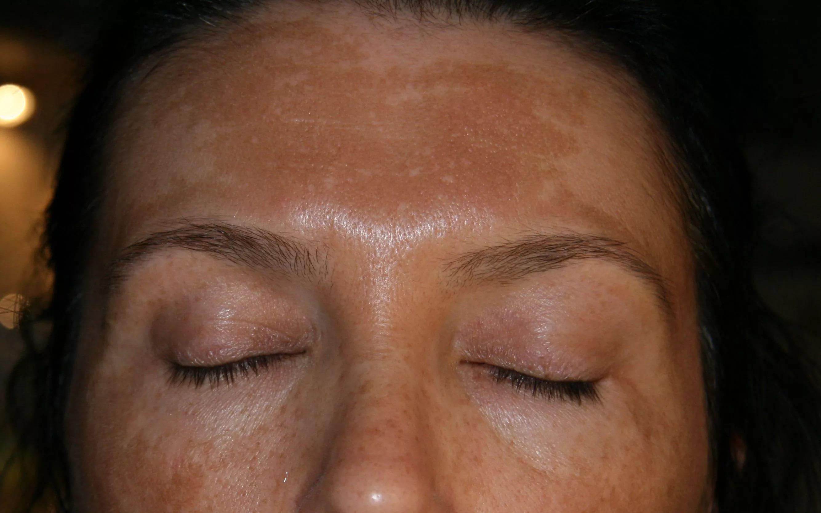 Гиперпигментация кожи лица на фото