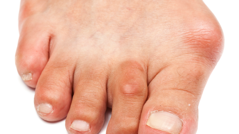 Нарост кости на суставах локтевой сустав и онемение пальцев
