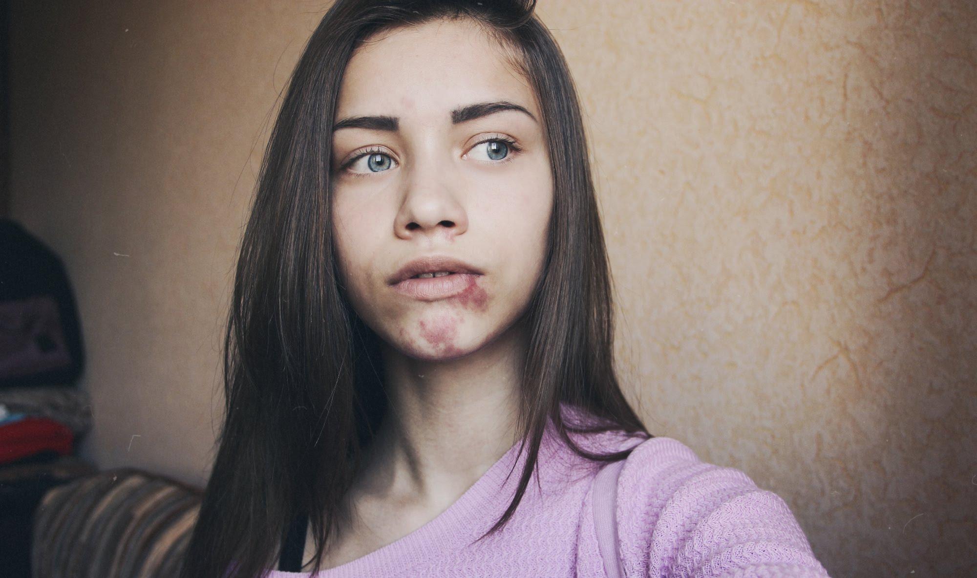 родимые пятна фото на лице