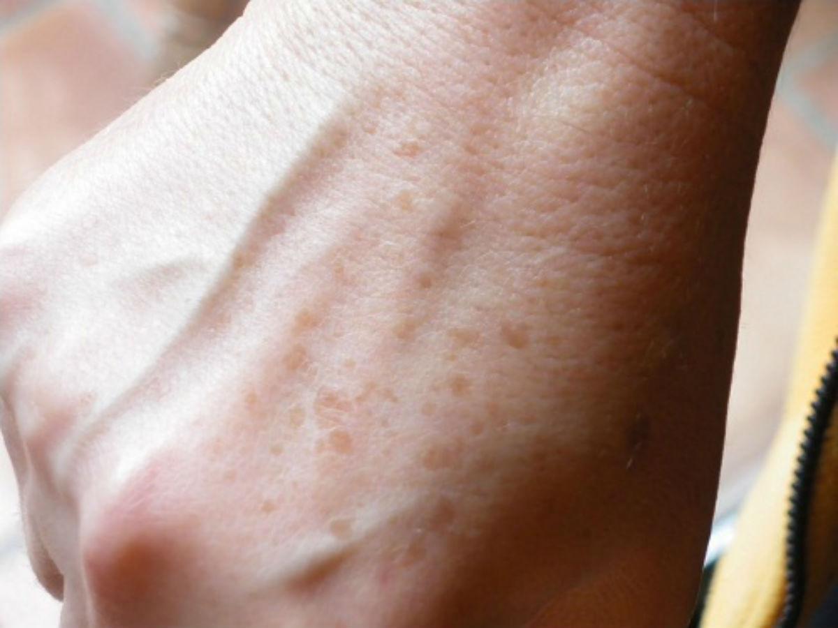 Темные пятна на коже после прыщей как избавиться