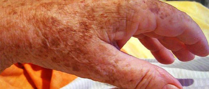 Болезнь печени красные пятна на теле