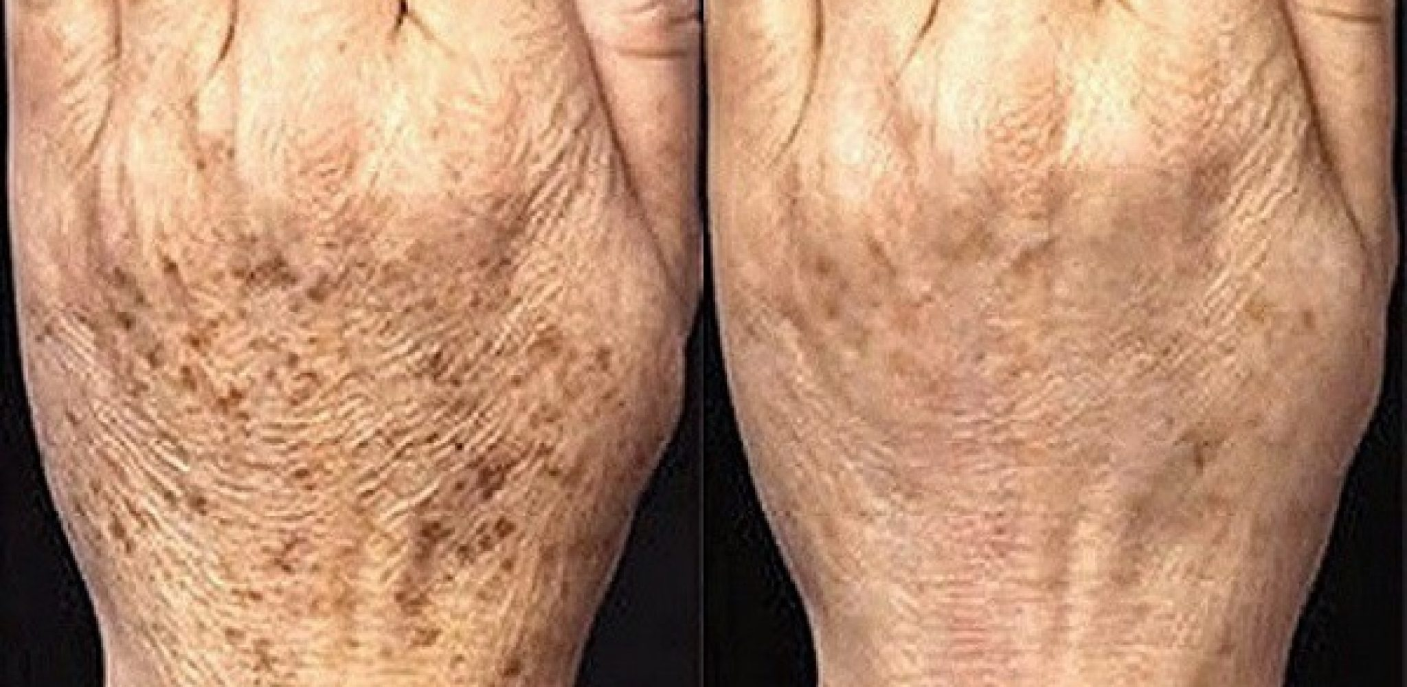 Почему на пальцах рук растут бородавки на руках