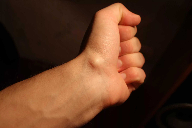 боли в связках локтевого сустава