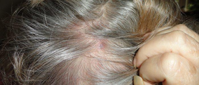 Криофарма от папиллом на интимных местах отзывы