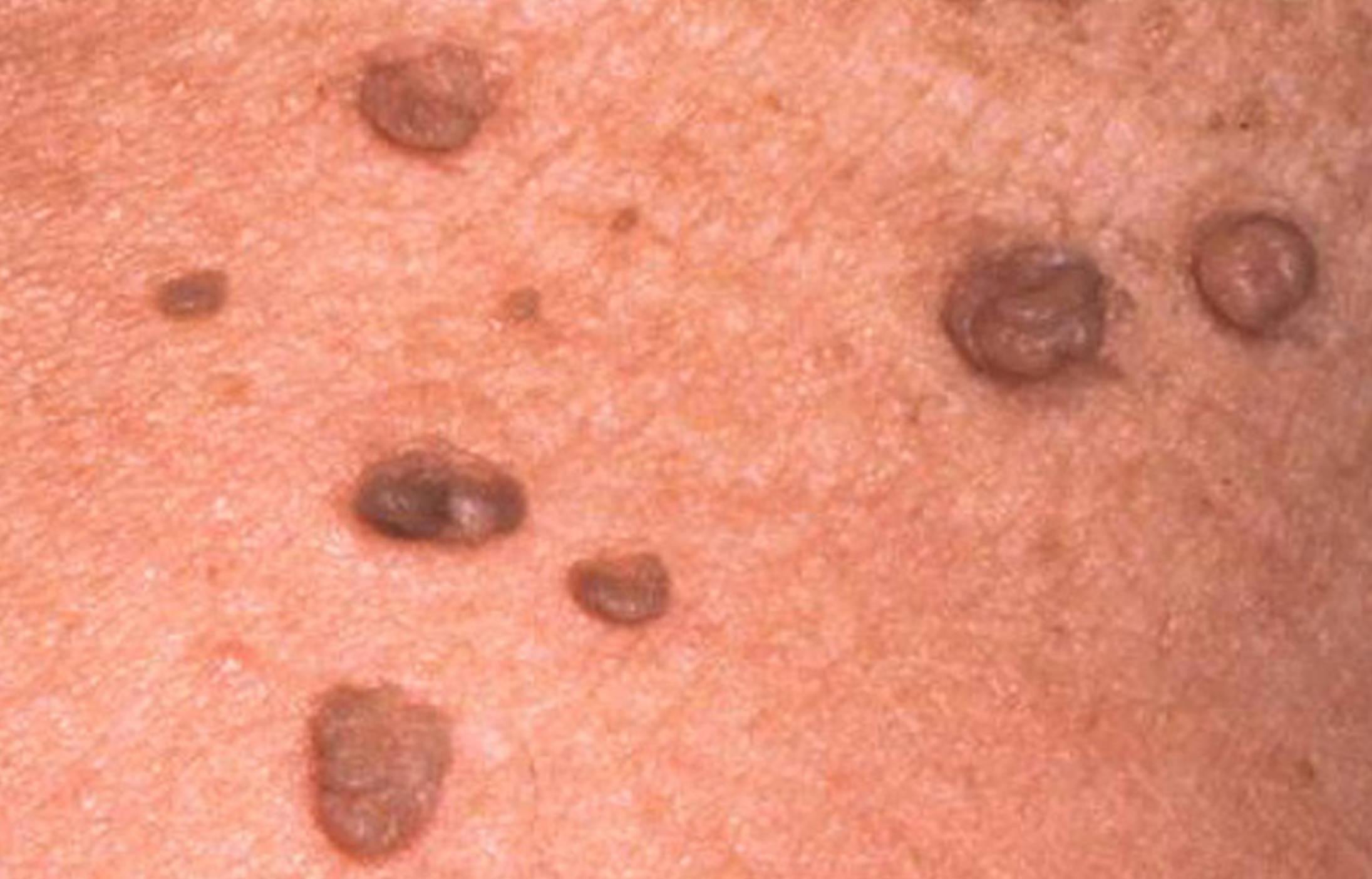 Папилломы и бородавки на теле фото