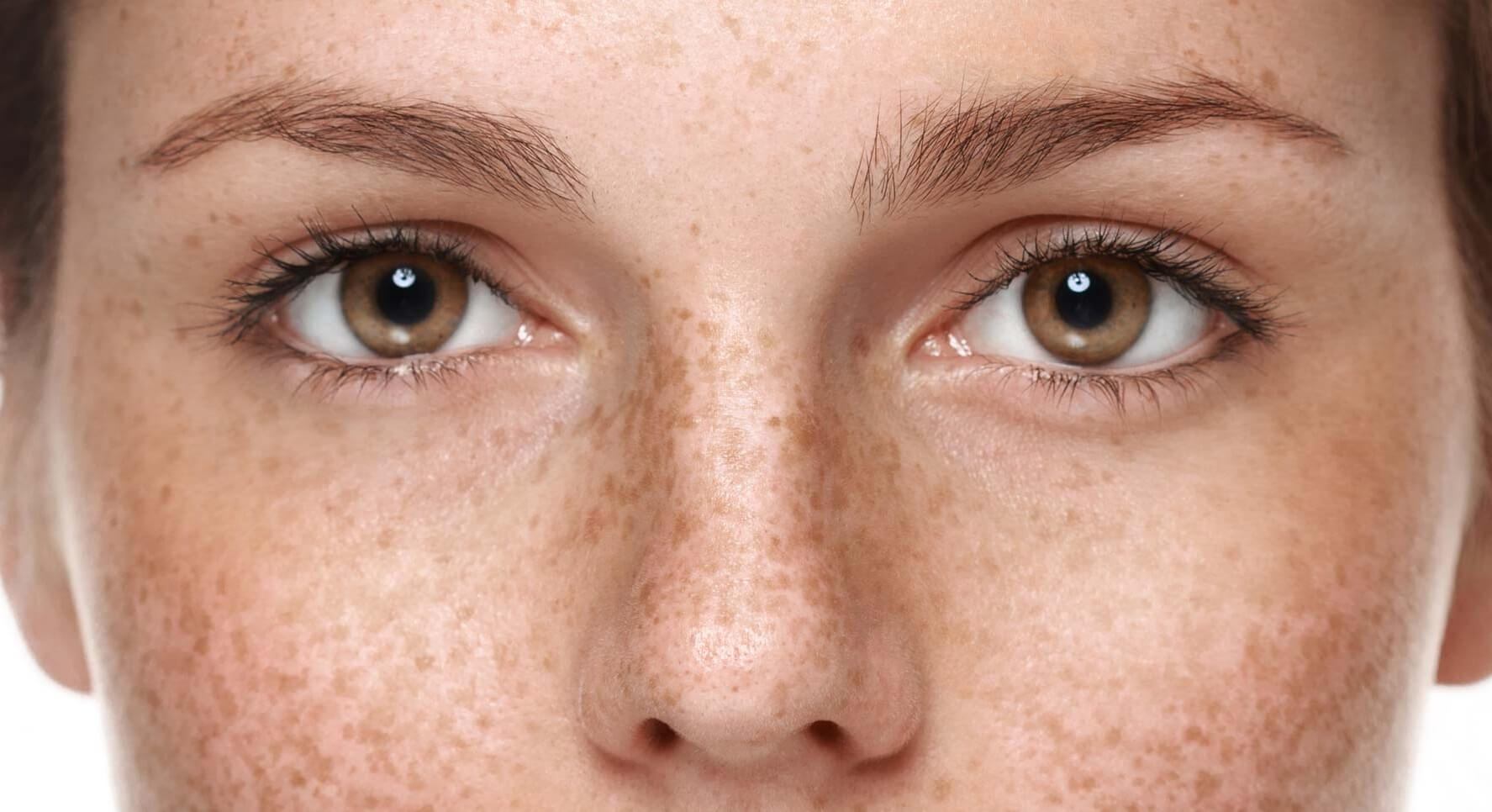 Как убрать пигментацию на лице в домашних условиях? 42