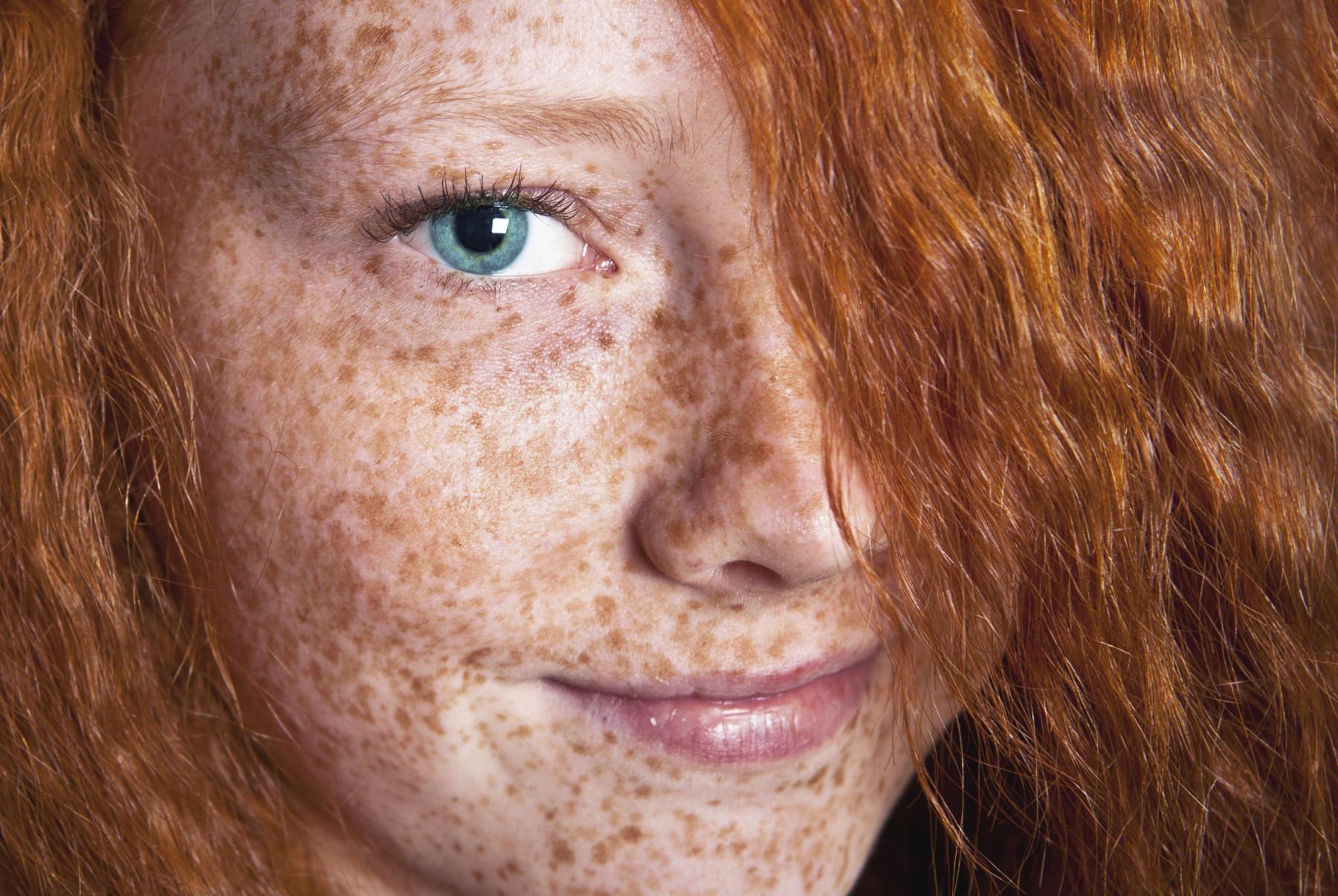 веснушки кожи фото