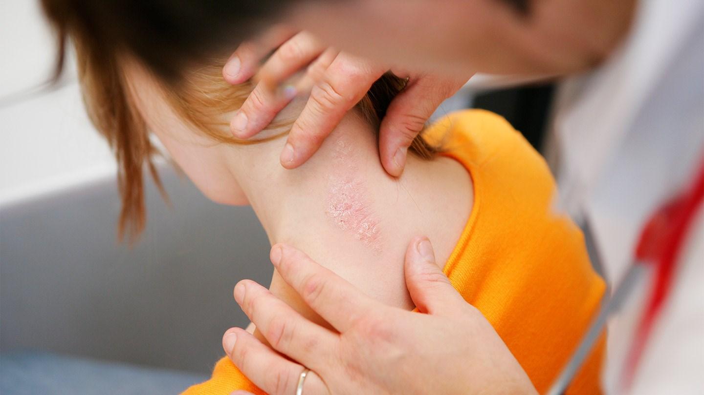 Как избавиться от жировиков на лице в короткие сроки? 53