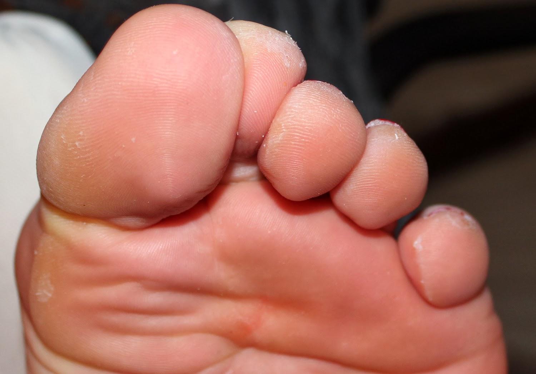 Сильная боль при прикосновении к зубу