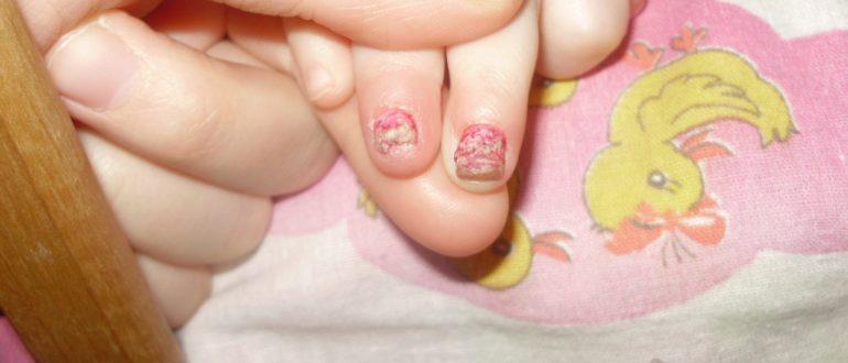 Фото гемангиома ногтях