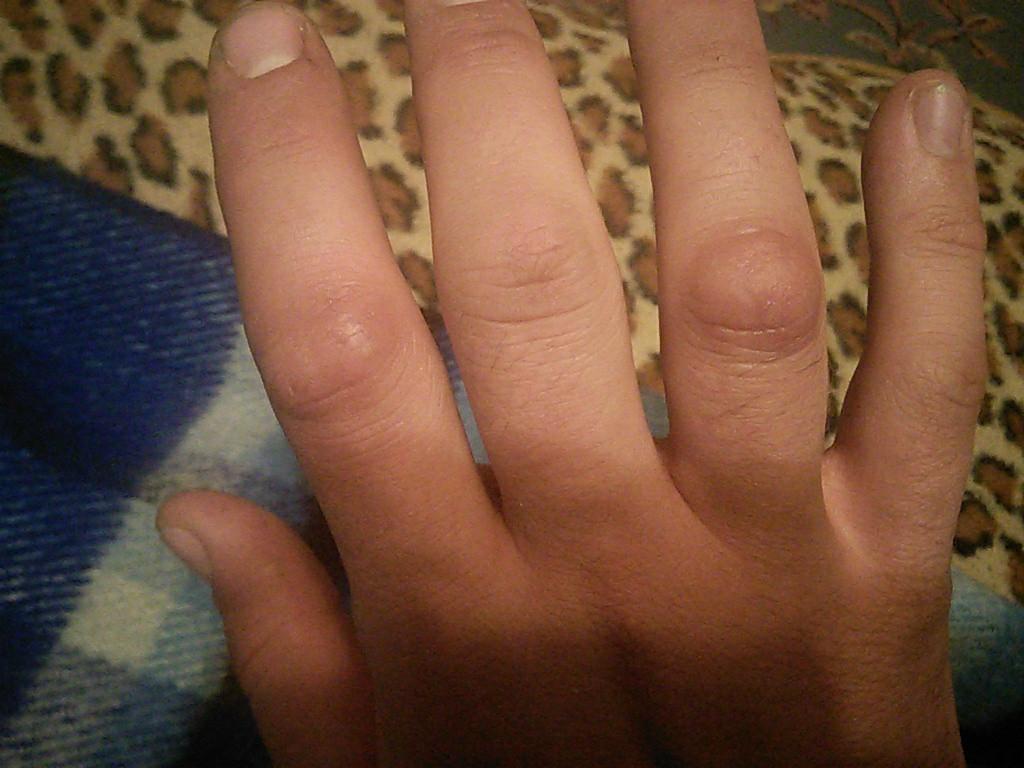 Артроз большого пальца ступни чем лечить