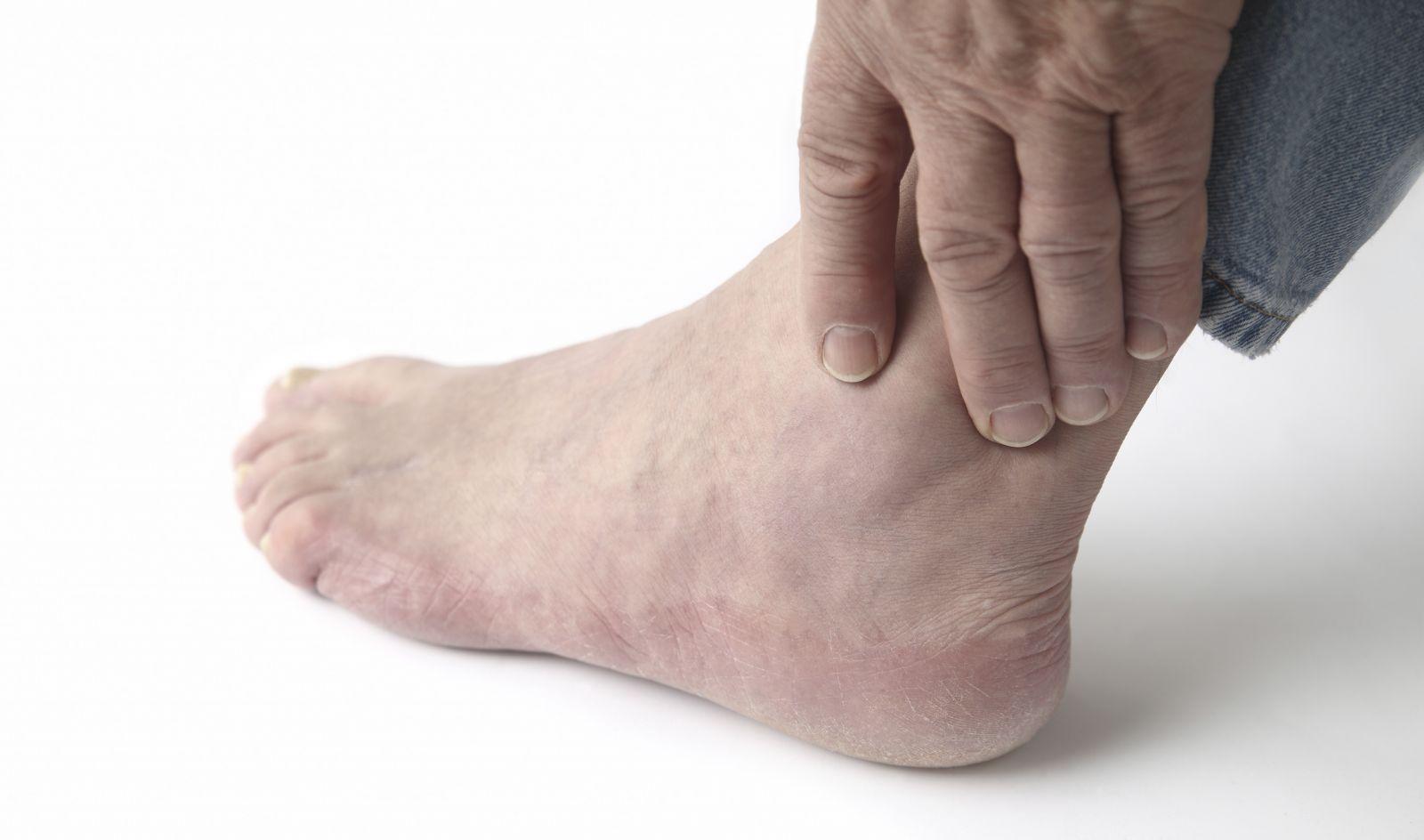 Нарост суставов народная медицына коленный сустав