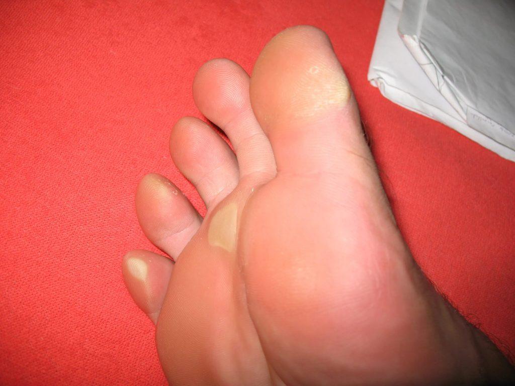 Чем вывести шипицу на ноге