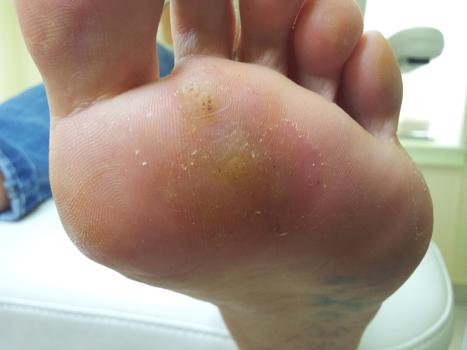 Лечение бородавки на ноге в домашних условиях 86