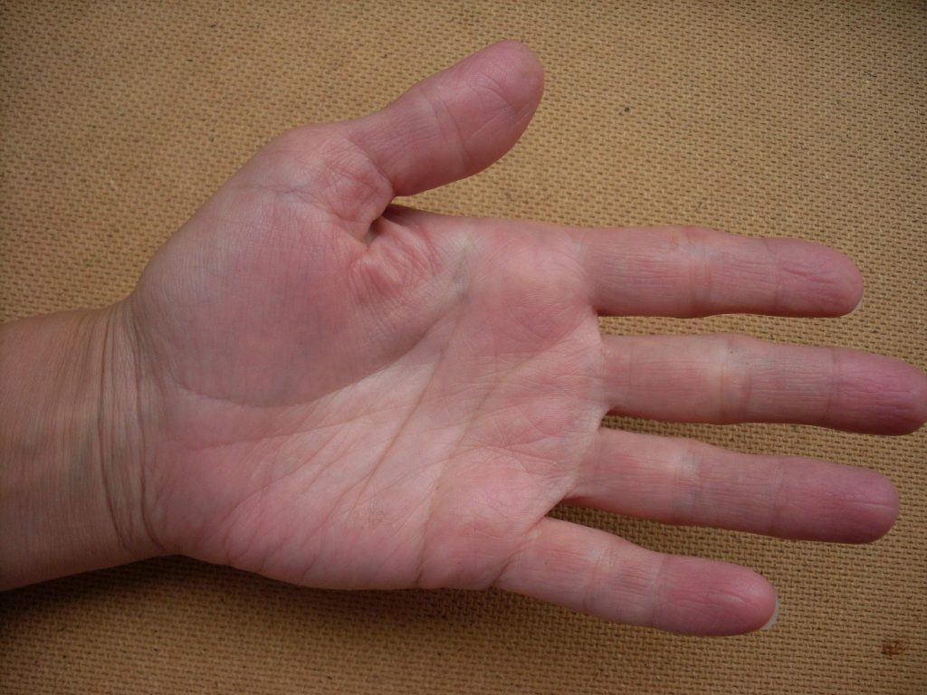 Шишки между пальцами на руках