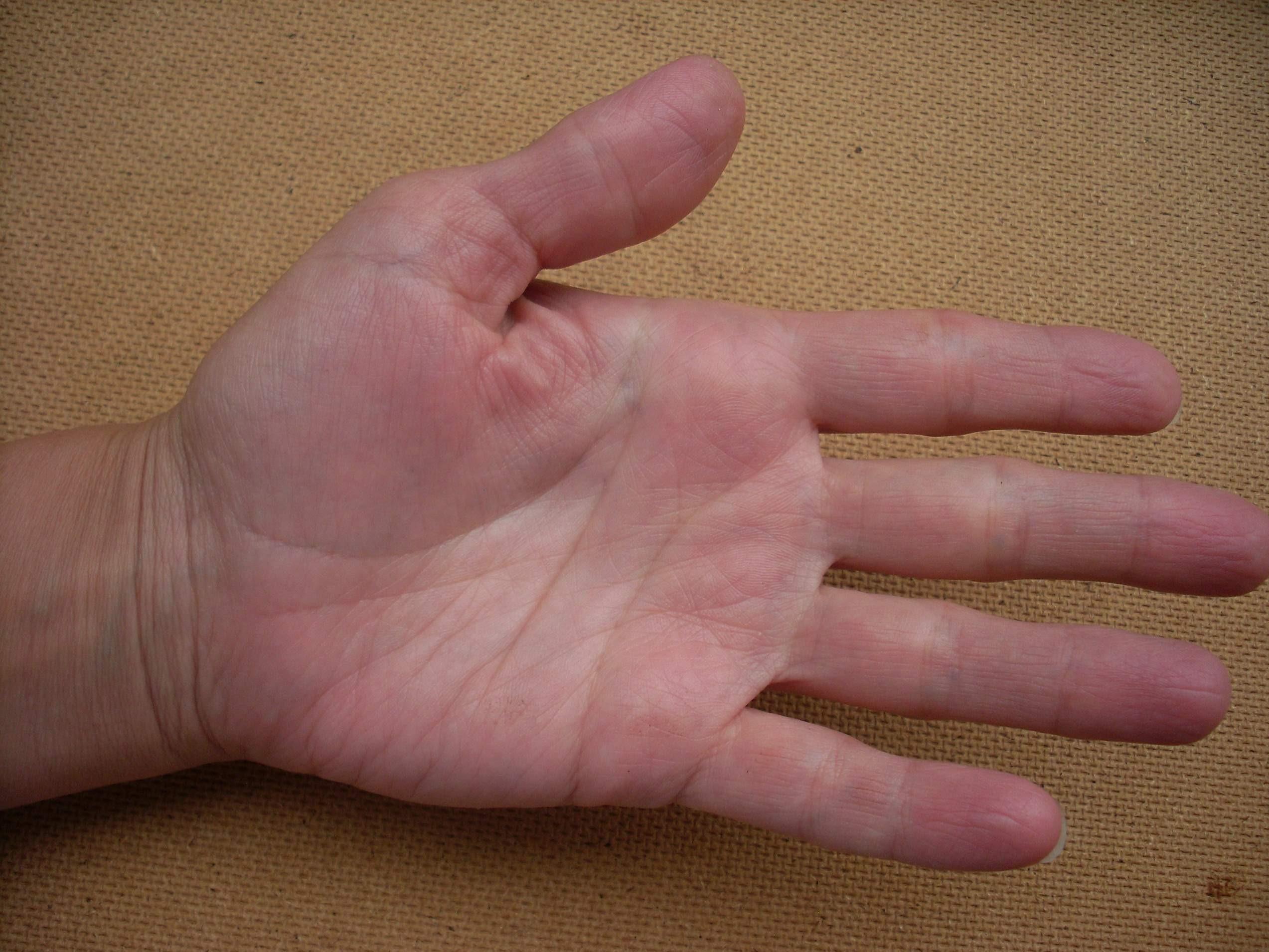 шишка на суставе пальцев руки