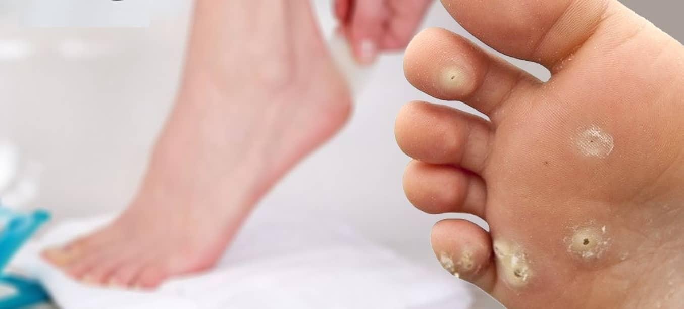Чем и как лечить натоптыши на ступнях в домашних условиях