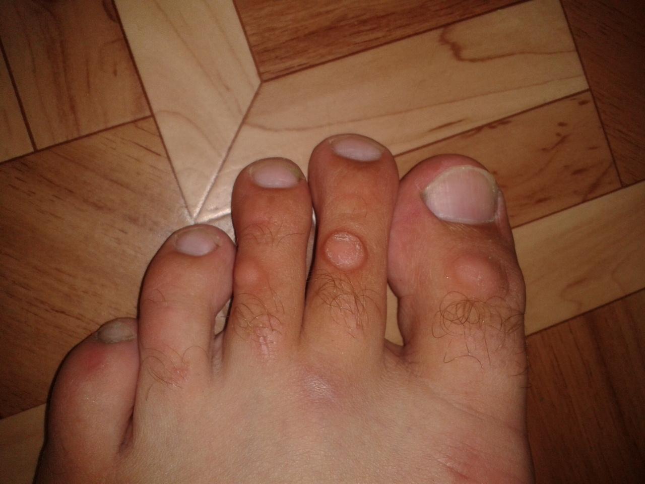 Мозоли на пальцах ног косточке большого пальца как лечить