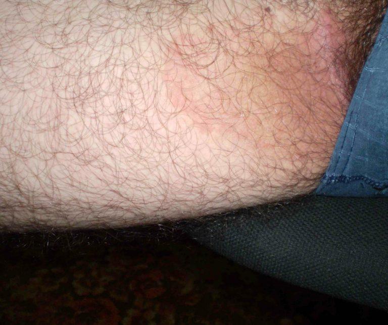 Покраснение промеж ног у мужчин